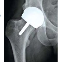 hip implant x-ray