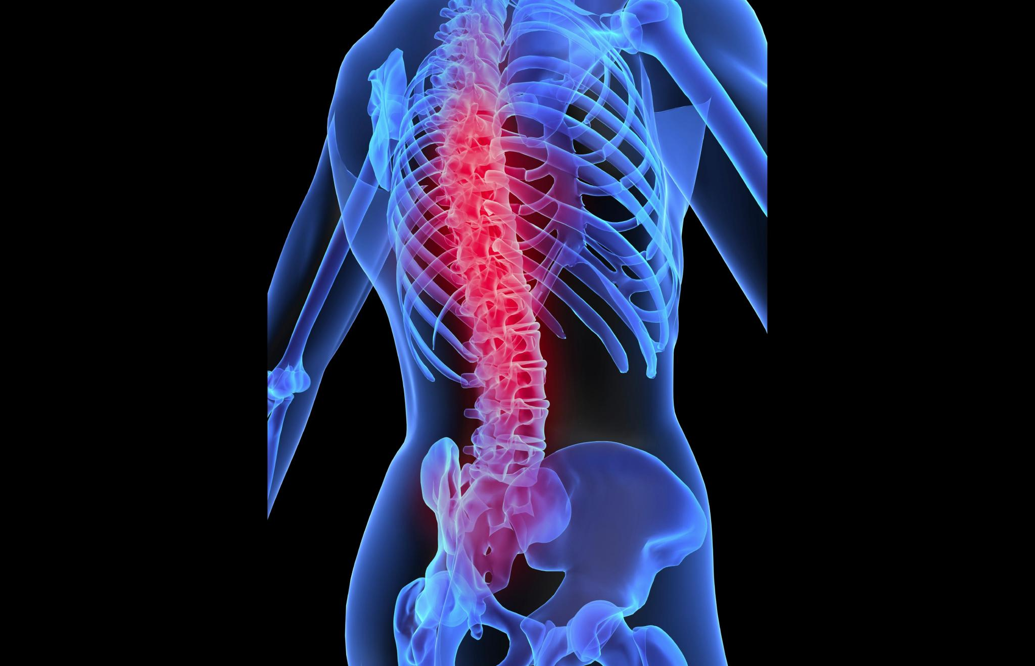 Can 2nd-tier spinal companies grow in a challenging sector?